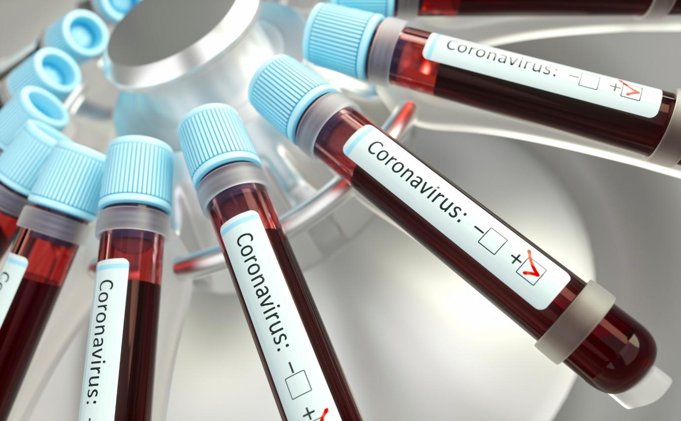 Saúde confirma mais 1,2 mil casos de covid-19 no estado